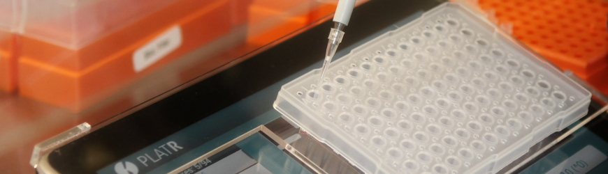 Pipetting without mistakes