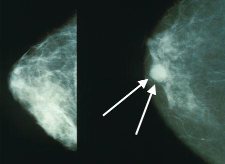 Mammo_breast_cancer_wArrows