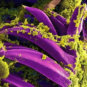 bacteria-808154_1280