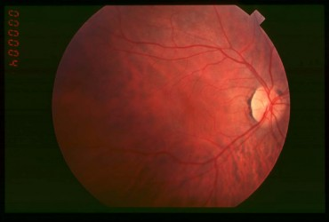 Fundus_of_patient_with_retinitis_pigmentosa_early_stage_FI