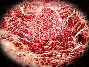 Migrating cancer cells