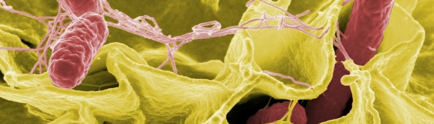 Salmonella cancer therapy