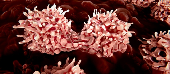 Stem cell therapy stroke